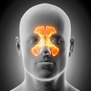 cuando-es-conveniente-operar-la-sinusitis-o-rinosinusitis-1